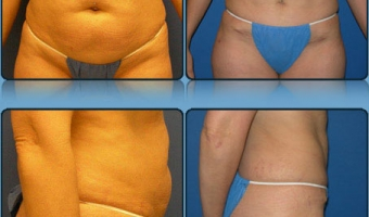 Tummy Tuck Case Study 5 - Before and After Result at Richmond Surgical Arts