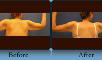 Brachioplasty Case Study 2 - Before and After Result at Richmond Surgical Arts