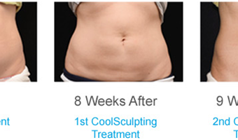 Coolsculpting - Before and After Result at Richmond Surgical Arts