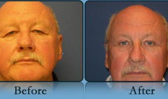Eyelid Lift Case Study 1 - Before and After Result at Richmond Surgical Arts