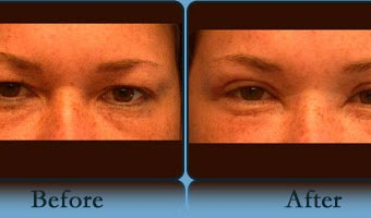 Eyelid Lift Case Study 2 - Before and After Result at Richmond Surgical Arts