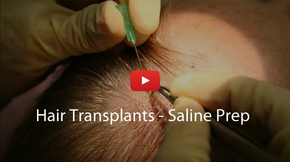 Hair Transplants - Separating Saline Video