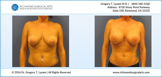 39 year women with 450 cc mod plus silicone implants Case Study | Richmond Surgical Arts