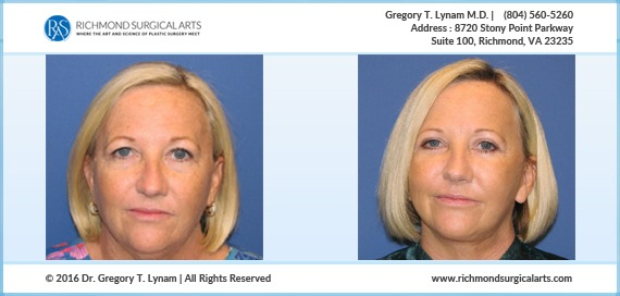 45 year old Temporal brow lift, upper and lower eyelid lift, Face and neck Case Study | Richmond Surgical Arts