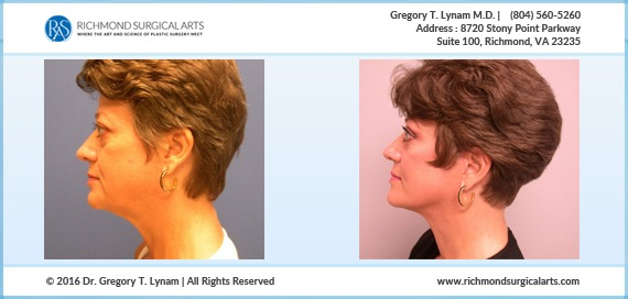 49 year old upper and lower eyelid lift Case Study | Richmond Surgical Arts