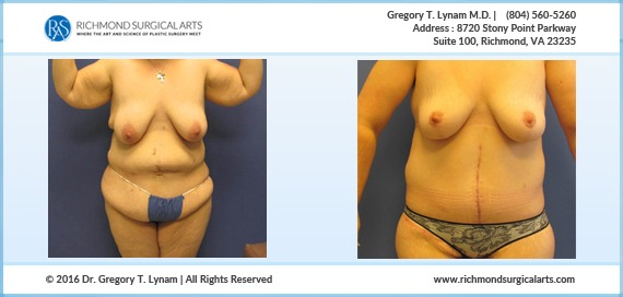 Women with Body lift, breast lift and arm lift Case Study | Richmond Surgical Arts
