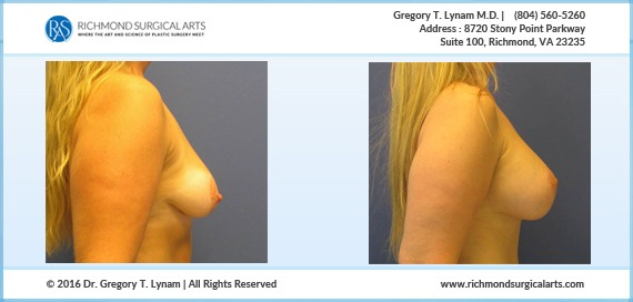 Women Breast lift with 400cc implants Case Study | Richmond Surgical Arts