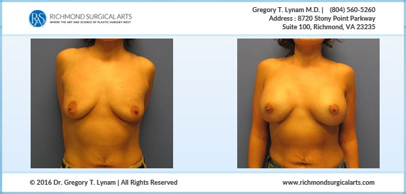 Breast lift with 371cc silicone implants Case Study | Richmond Surgical Arts