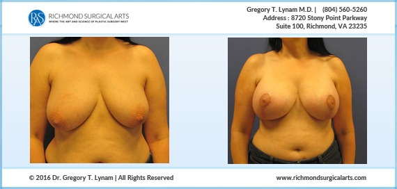 Women with 425cc saline implants Case Study | Richmond Surgical Arts
