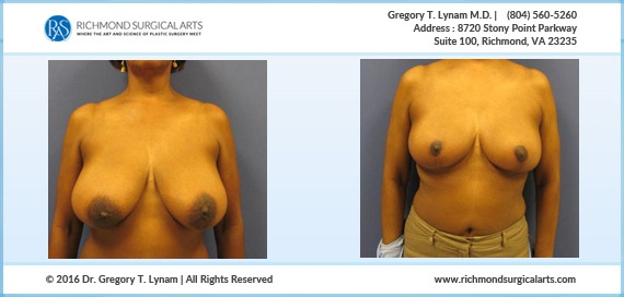 61 year Old Women breast reduction Case Study | Richmond Surgical Arts