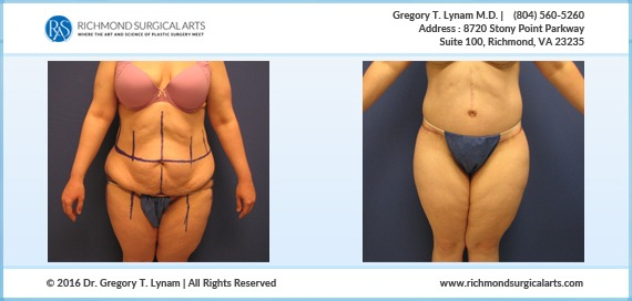 27 year circumferential body lift Case Study | Richmond Surgical Arts