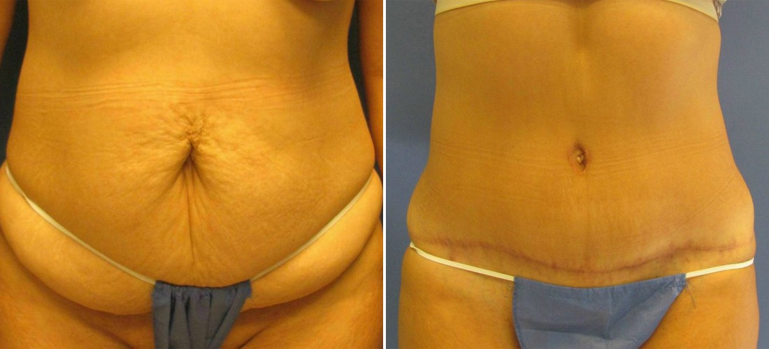 42 Year With Tummy Tuck Case Study Richmond Surgical Arts
