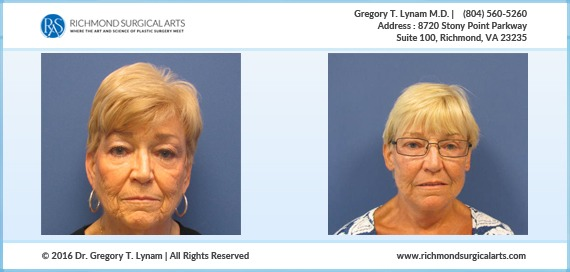 70 year old Facelift/Necklift Case Study | Richmond Surgical Arts