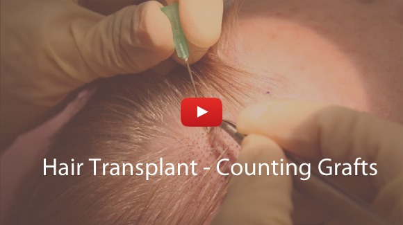 Hair Transplants - Counting Grafts Video