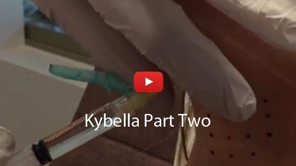 Kybella Video Testimonials 2
