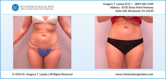 35 year old female liposuction for lateral thigh or saddle bag area Case Study | Richmond Surgical Arts