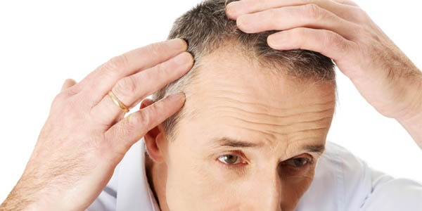 NeoGraft Hair Transplants Guide Part 3 – NeoGraft Vs FUT