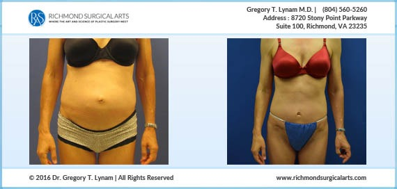 Tummy Tuck 3 Months Post Op Case Study | Richmond Surgical Arts