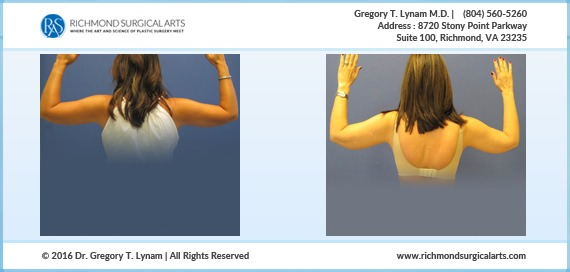 arm-liposuction-small