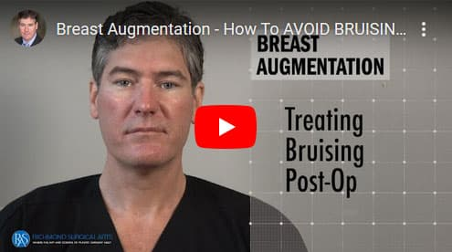 How-To-AVOID-BRUISING-Post-Operatively