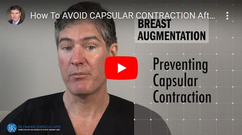 How-To-AVOID-CAPSULAR-CONTRACTION-After-A-Breast-Augmentation