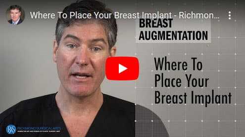 Where-To-Place-Your-Breast-Implant